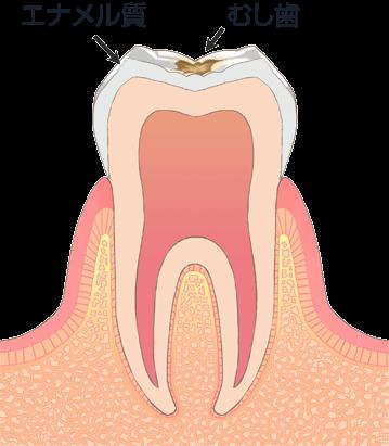 軽度のむし歯(C1)