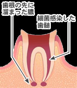 細菌感染した歯髄と歯槽の先に溜まった膿