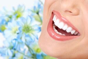ホワイトニングによる白い歯